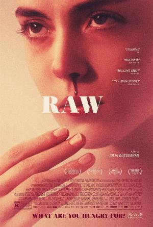 dfn_raw_300